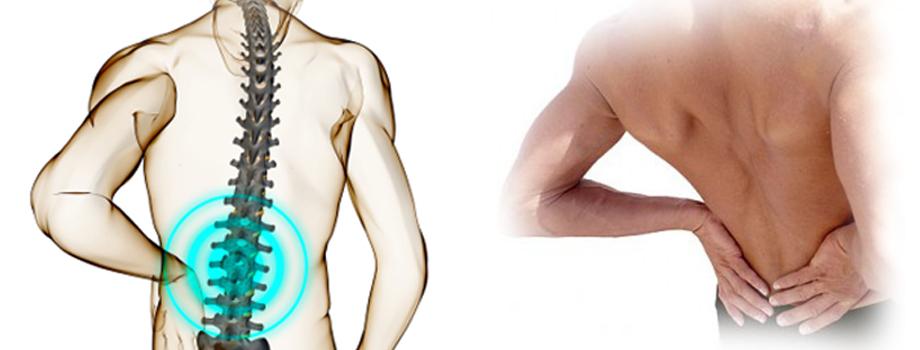 Tratamientos de la Fisioterapia para el Dolor de Espalda